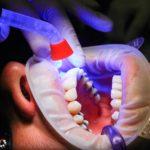 Złe podejście odżywiania się to większe niedobory w jamie ustnej natomiast również ich zgubę